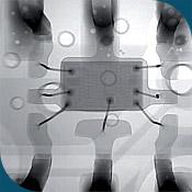 микросварка проволочных выводов